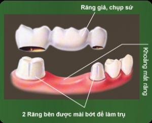 Chụp răng sứ uy tín 2