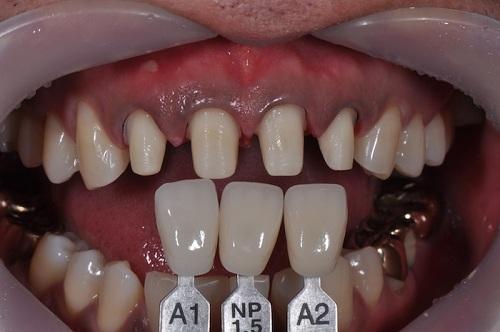 Bọc răng sứ là gì? Thực hiện bọc răng sứ như thế nào?