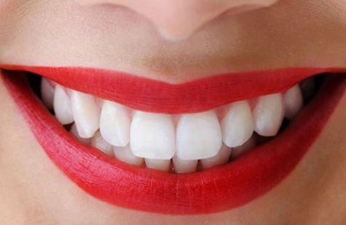 cách bảo quản răng sứ