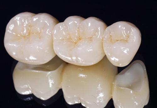 có nên bọc răng sứ 3