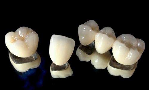 có nên làm răng sứ Titan