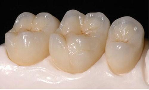 có nên làm răng sứ Titan 2