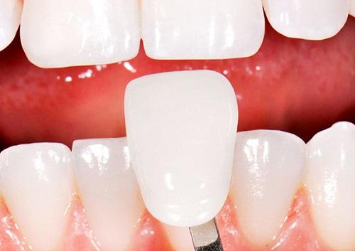 chụp răng sứ venus
