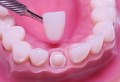 chụp răng sứ Venus 2