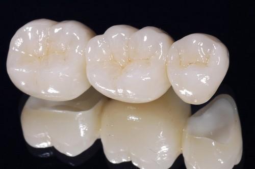 Răng sứ có tuổi thọ được bao lâu 2