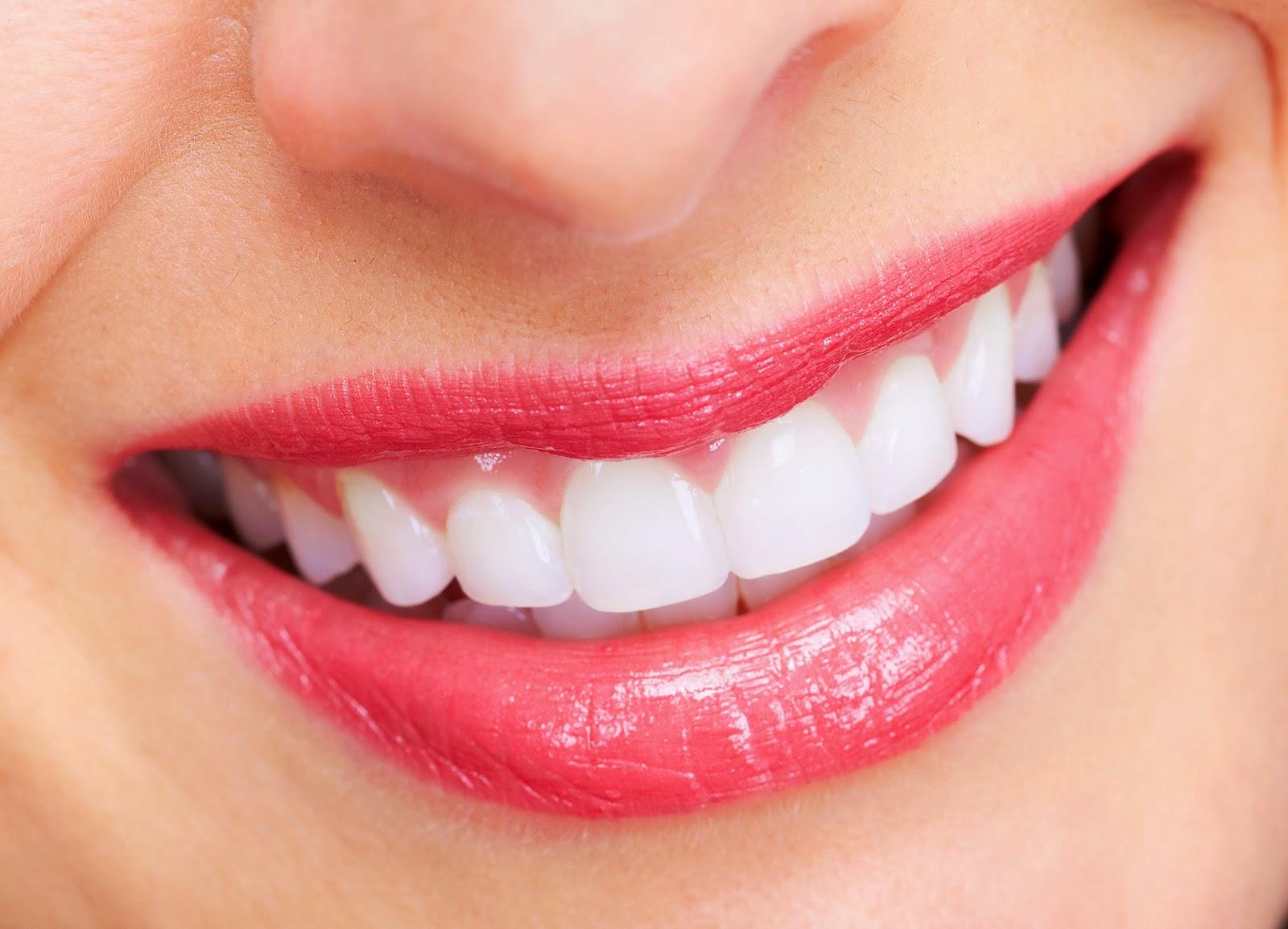 Răng sứ có tuổi thọ được bao lâu