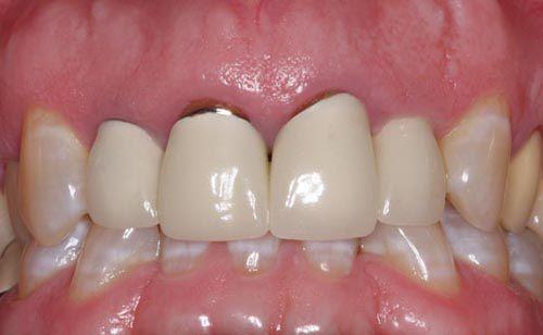 hở cổ chân răng khi bọc răng sứ không đúng cách