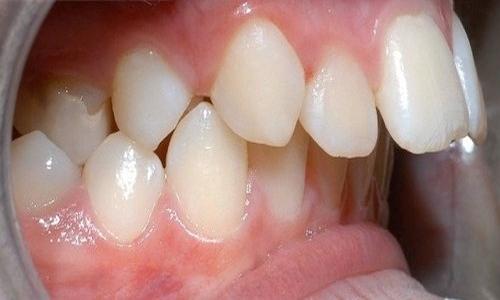 tại sao răng bị thưa 2
