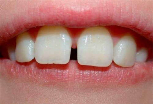 tại sao răng bị thưa