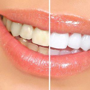 Lấy cao răng để làm gì?