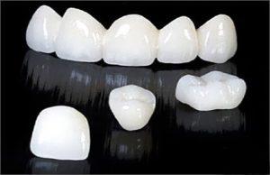 Tuổi thọ của răng sứ titan
