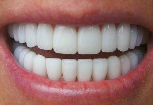 Răng sứ titan tốt không 2?