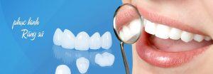 Tuổi thọ của răng sứ titan 2