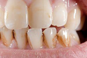 Cạo vôi răng có tốt không