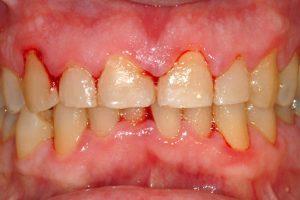 Cạo vôi răng thường xuyên tốt hay không