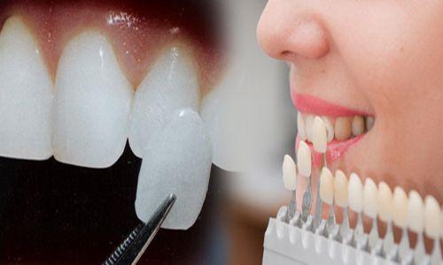 Răng sứ venus có tốt không 2