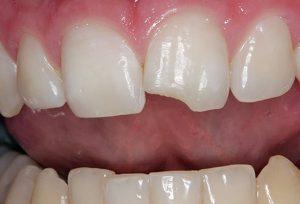 Nguyên nhân răng bị mẻ