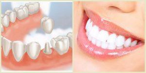 Thời gian bọc răng sứ