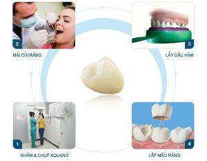 Thời gian bọc răng sứ 2
