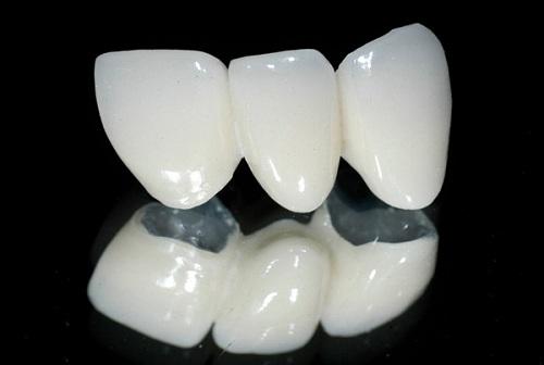 Bọc răng sứ titan có tốt không