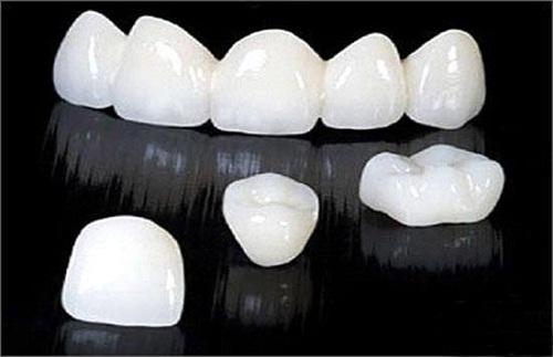 chụp răng sứ venus có tốt không 2