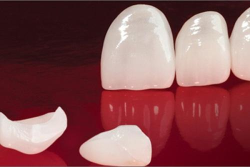 Chụp răng sứ venus có tốt không