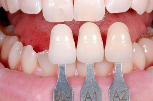 Răng sứ cercon có tốt không 2