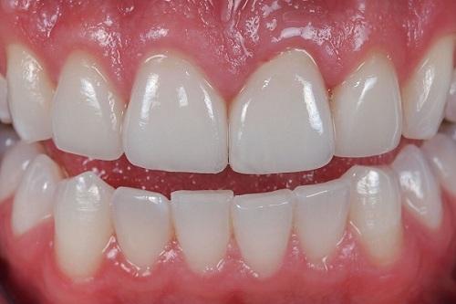 Ưu điểm của răng sứ cercon 2