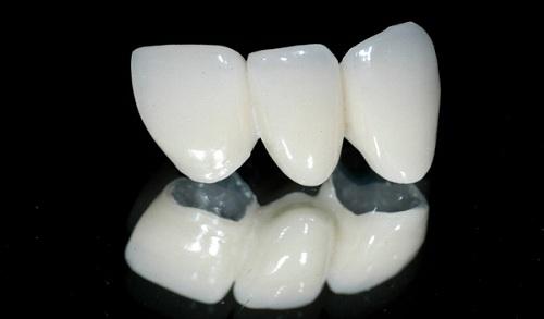 Bọc răng sứ titan bao nhiêu tiền