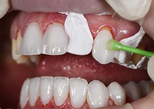 Bọc mão răng là gì 2