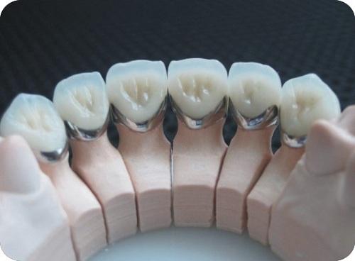 Bọc răng sứ kim loại 2