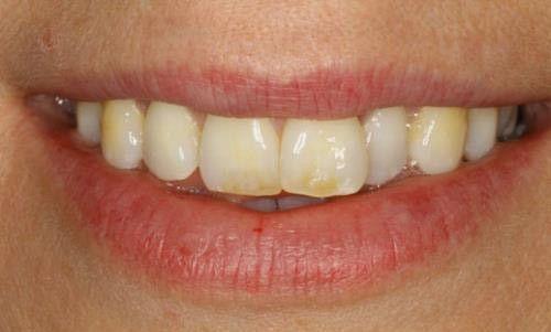 Cách khắc phục thiếu sản men răng 2