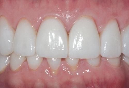 Cách nhận biết răng sứ titan 2