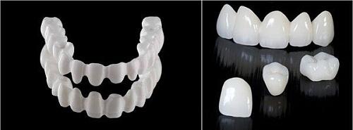 Làm răng sứ nên lưu ý gì
