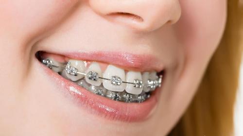 Răng hơi hô có nên niềng