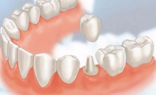 Răng hơi hô có nên niềng 2