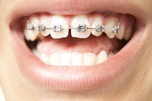 Răng cửa bị thưa 2