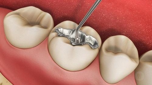 Hàn răng sâu có đau không