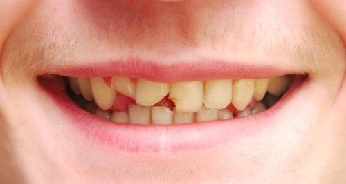 Nguyên nhân bị mẻ răng