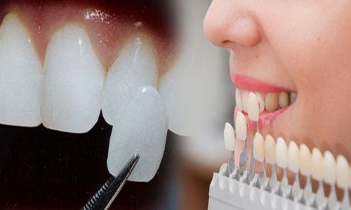 Cách mài cùi răng 2
