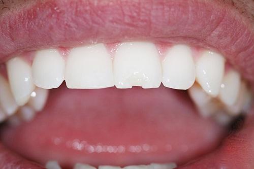 Mài ngắn răng cửa 2