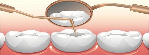 Trám răng sâu