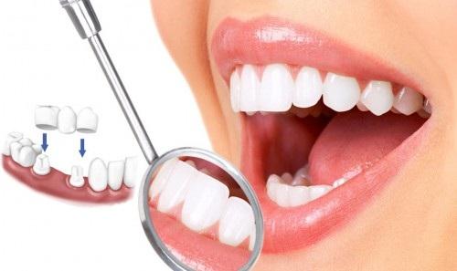 Làm gì khi răng bị mẻ
