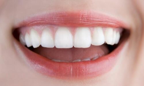 Làm sao để răng hết hô
