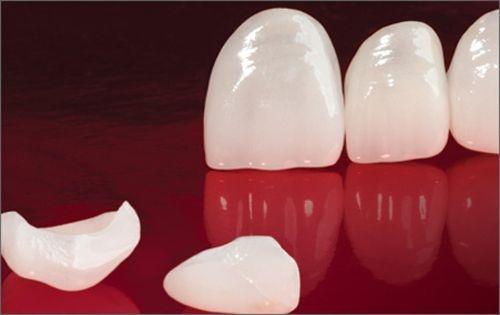 Độ bền của răng sứ cercon