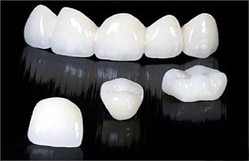Độ bền của răng sứ Cercon 2
