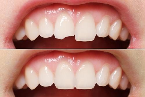 Hàn răng bị mẻ