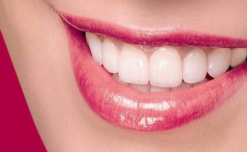Hàn răng bị mẻ 2