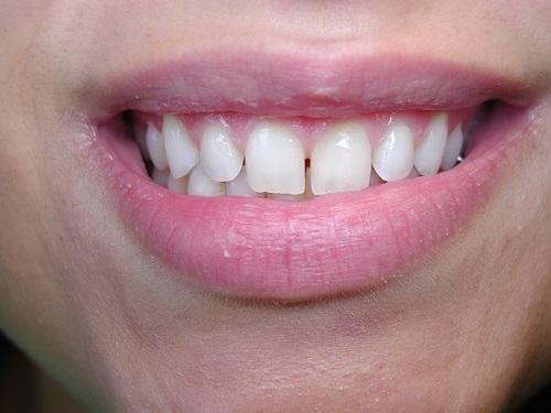 Nguyên nhân răng thưa