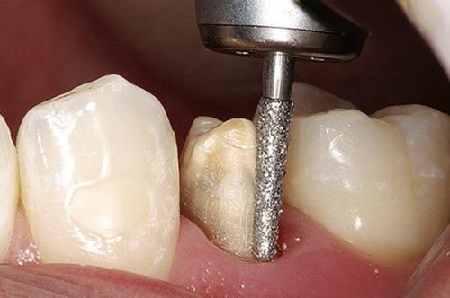 Mài răng khôn 2